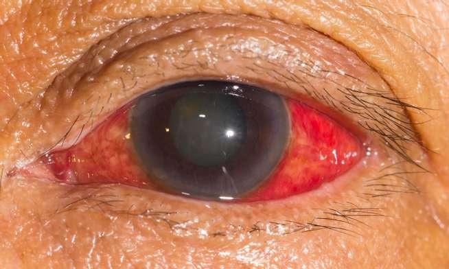 32dfab4d GRØNN STÆR: Øyet vil være smertefullt og rødt. Foto: NTB Scanpix