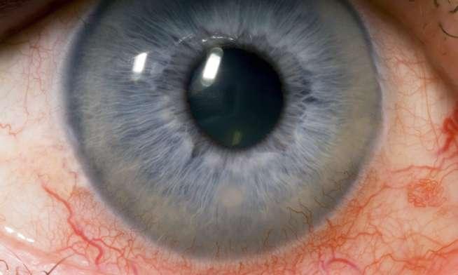 56c0d689 RØDT ØYE: Hornhinnebetennelser gir smerter,rødt øye, lysømfintlighet og  verking i øyet.