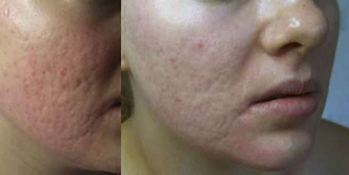 9ebb780b MICRONEEDLING: En populær behandling hos hudpleier er såkalt microneedling.  Her er førbilde (til