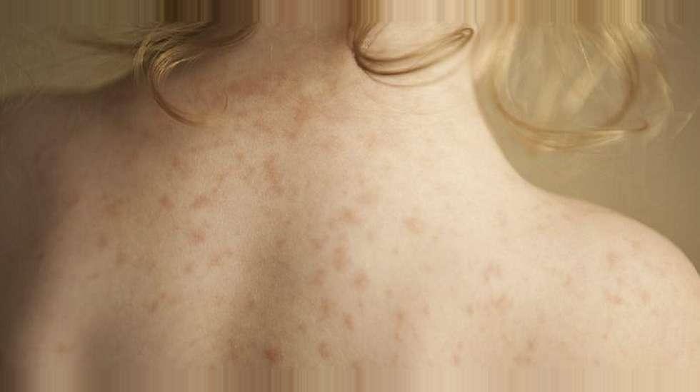 5fe5a126 HUDPROBLEMER: Utslettet på ryggen til denne jenta er en allergisk reaksjon  på antibiotika. Denne
