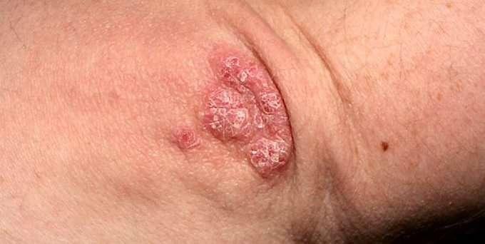 psoriasis kløe