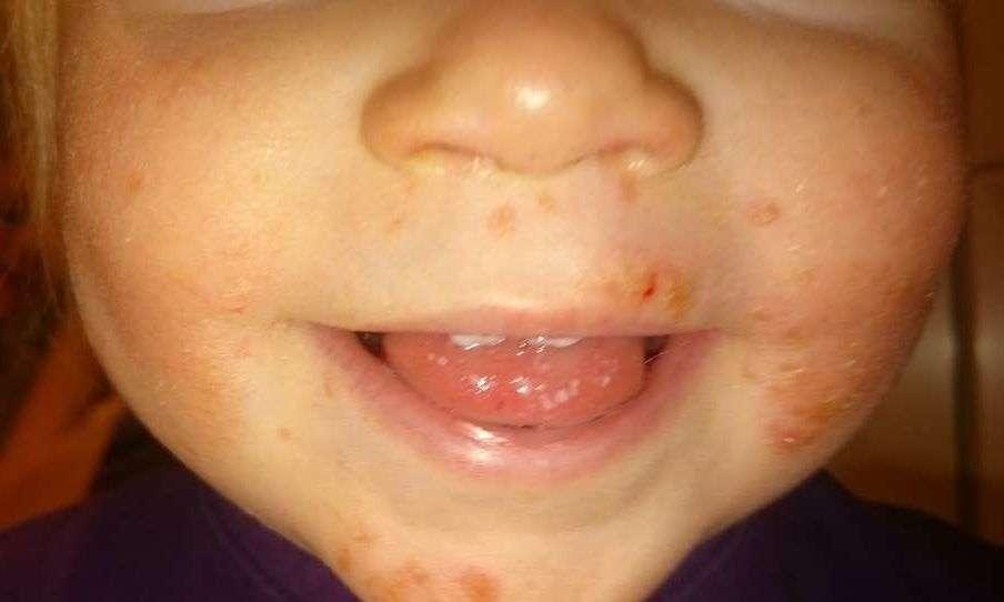 små hvite prikker på tungen