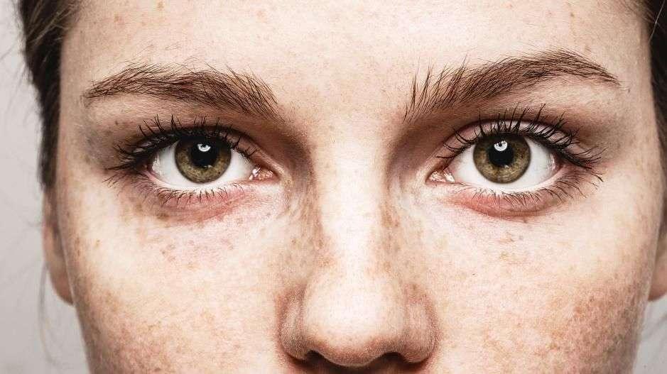 fc2623d5 Det finnes en rekke øyesykdommer som kan avsløres av symptomer på øyet.  Mange av disse sykdommene krever akutt hjelp.