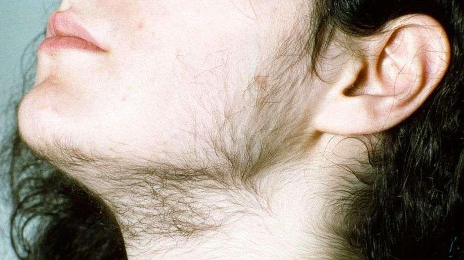 hårvekst på hodet