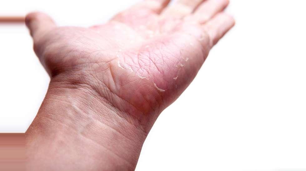 ekstrem kløe i huden