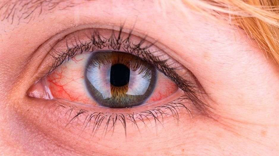 55af31ac Seks symptomer fra øynene du bør ta på alvor | ABC Nyheter