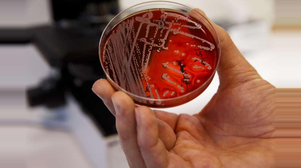 kosthold ved antibiotikabehandling
