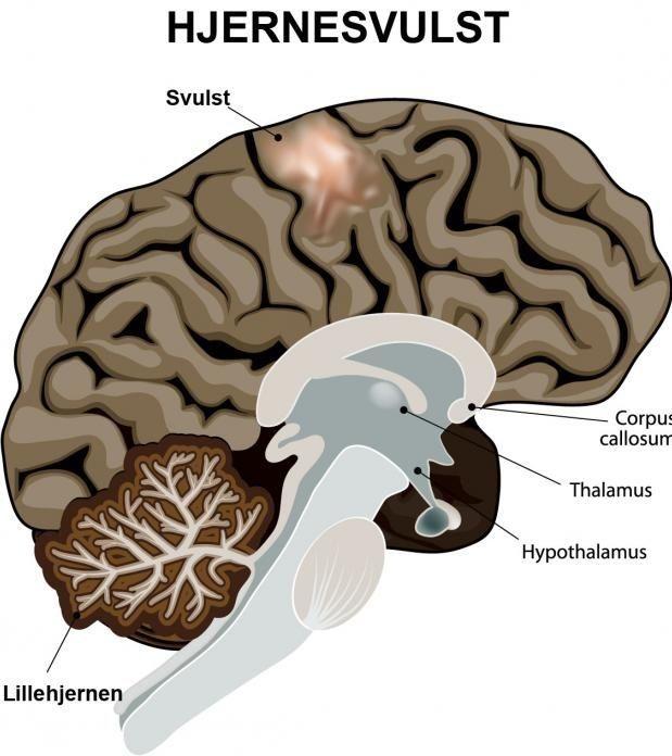 svulst i hjernen