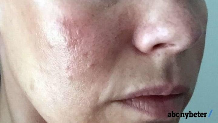fjerne hudormer hos hudpleier